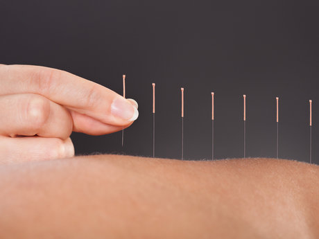 5-pack Energetic Acupuncture
