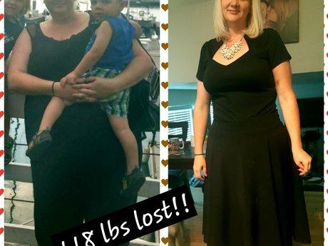 Discuss weight loss surgery