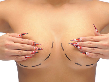 Breast reduction Q&A