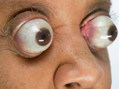 Stare Therapy