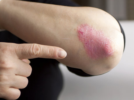 Psoriasis Questions Answered