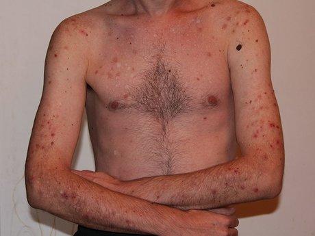 Dermatillomania Skin Picking