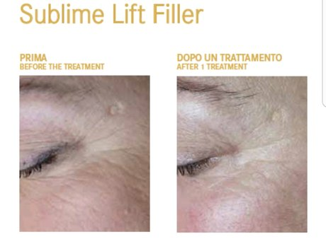Sublime Lift Microdermabrasion