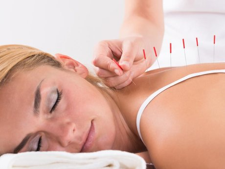Acupuncture & cupping treatments