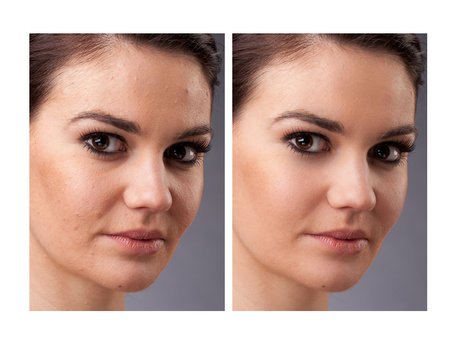 Retouch 1 Photo in Photoshop