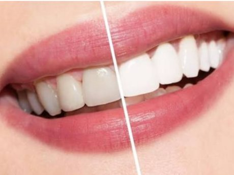 DIY for natural white teeth