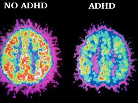 ADHD Education