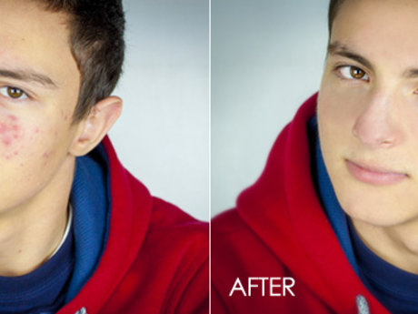 Blemish/Acne Removal ( 3 Photos)